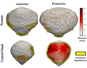 Front and rear images of a cancerous prostate and a noncancerous central gland.