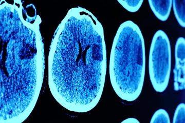 Close up image of brain scan results on wall
