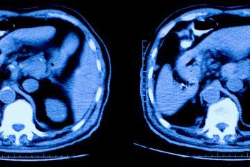 Photo of MRI scan