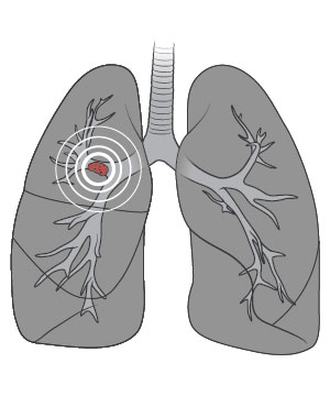 Illustration of lung CT screening technology
