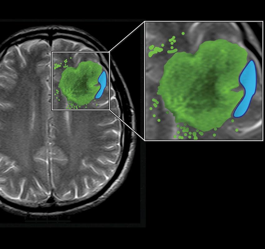 Illustration of brain scan technology