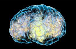 Illustration of a degenerative disease in brain