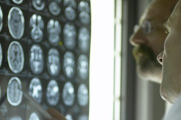 Two doctors looking at brain scans