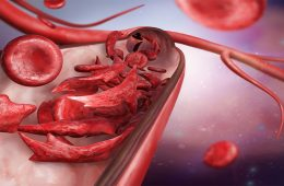 Illustration of healthy red blood cells and sickle cells in a cutout of a blood vessel.