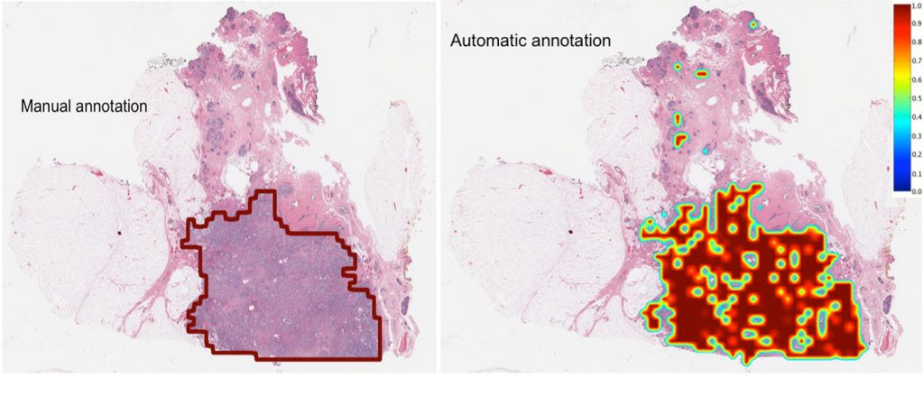 A side-by-side comparison of a breast cancer tumor delineated by a pathologist and the same tumor delinated by a computer. Both drew the boundaries on a digitized image made from a biopsy slide.
