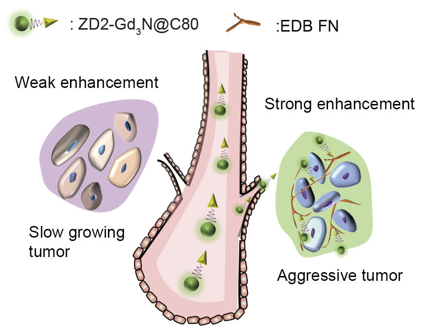 The illustration represents the concept of the work. The targeted contrast agent, ZD2-Gd3N@C80, binds to aggressive tumor and produces strong signal enhancement, but not in a slow-growing tumor, which allows detection and risk-stratification of breast cancer.