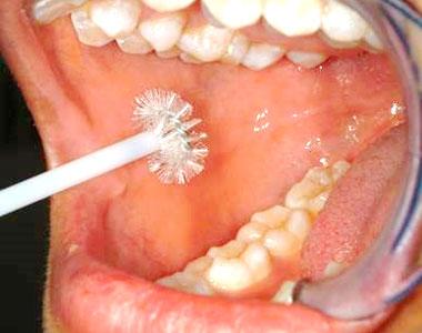 Photo of mouth examination.
