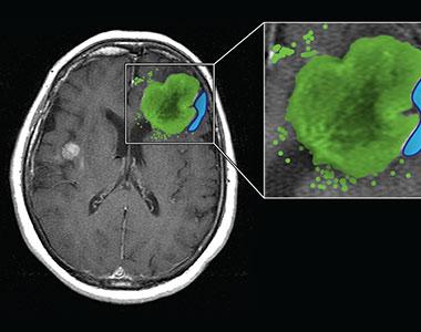 Image of brain tumor.