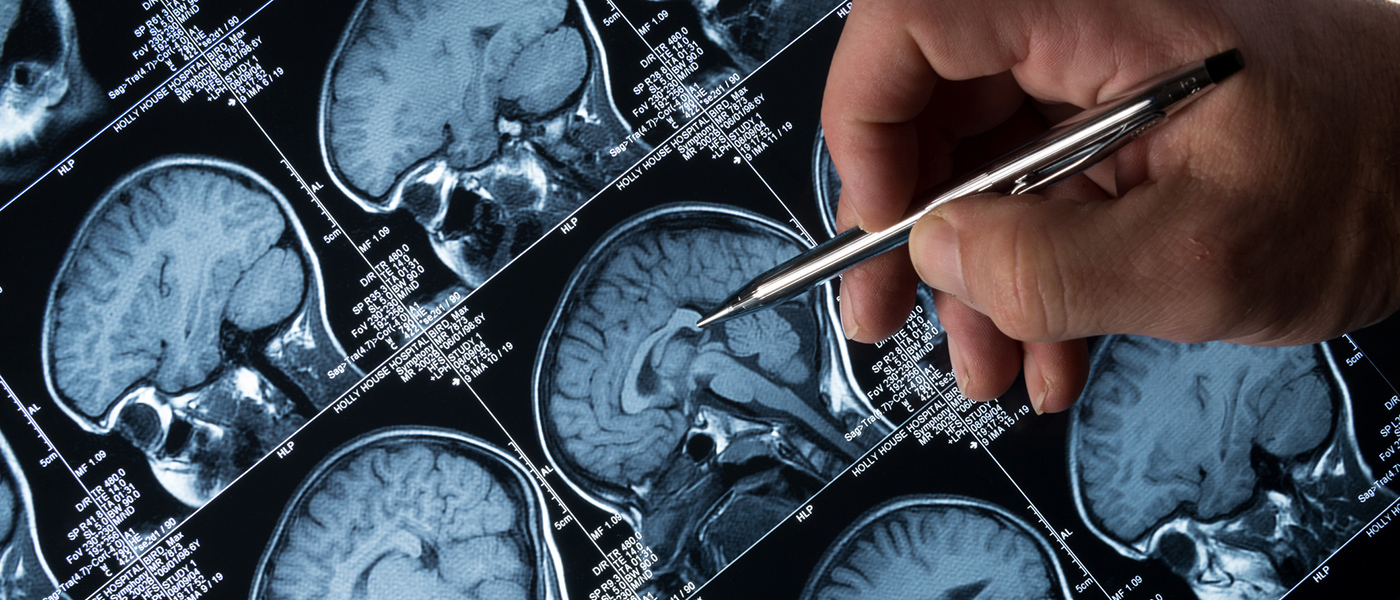 Cleveland researchers recruiting for Alzheimer's disease clinical trial