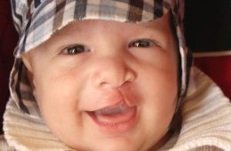 Child with a cleft lip/palate smiling