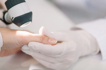 Photo of a gloved hand holding someone else's bare hand as skin testing is performed