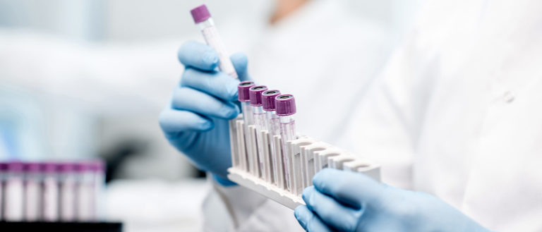 Close-up photo showing gloved hands holding samples in vials