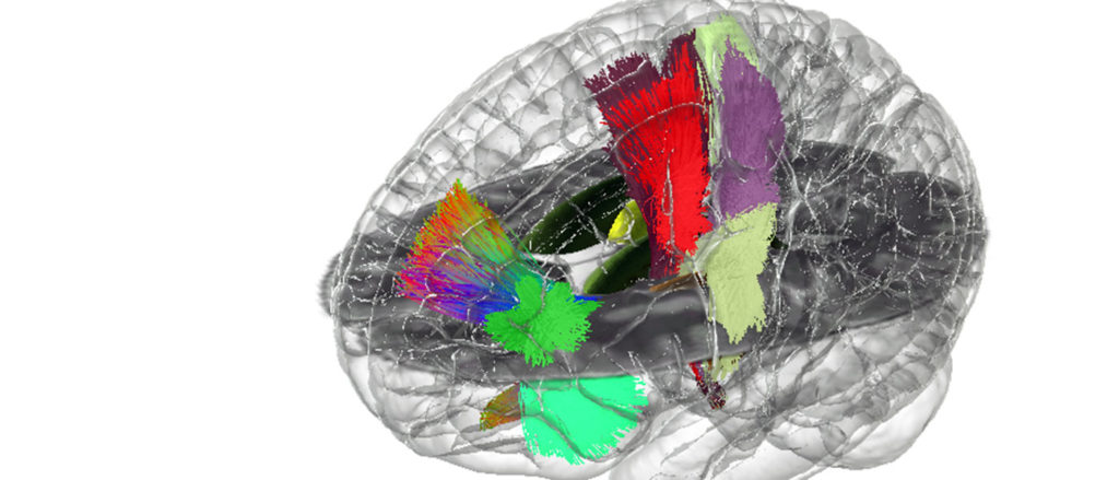 A 3-D illustration of a human brain