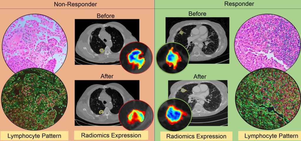 A diagram showing thed differences in CT radiomic patterns before and after initiation of checkpoint inhibitor therapy.