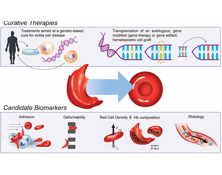 A graphic representation of how genetic therapies can help cure sickle cell disease
