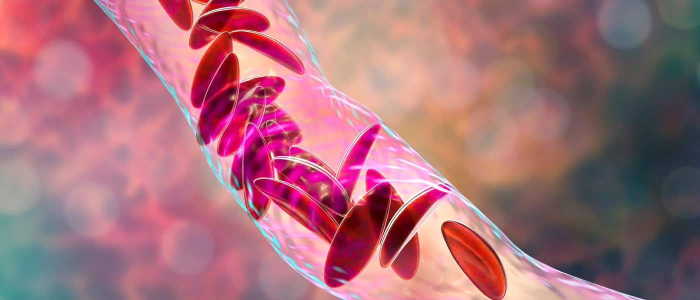 Photo illustration showing sickle cell anemia in a blood vessel