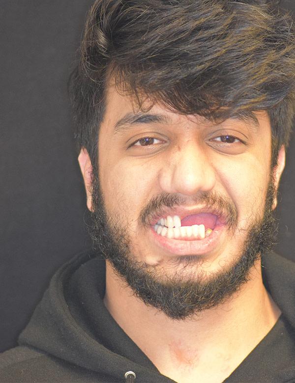 Photo of Talha Ali before he had teeth implanted