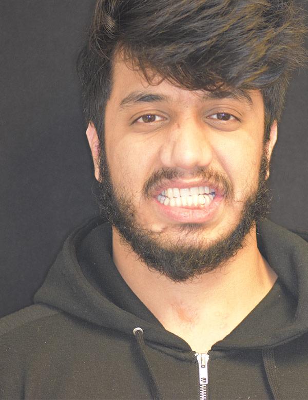 Photo of Talha Ali showing teeth implant