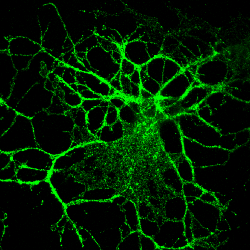 Myelin-producing brain cell with PLP protein stained in green