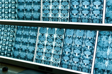 photo of numerous computer screens showing MRI scans